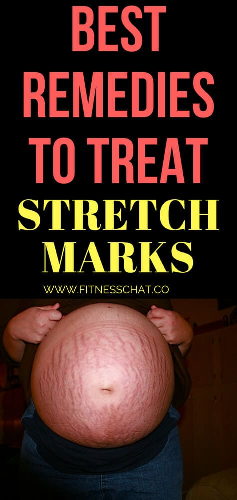 best remedies to treat and get rid of stretchmarks naturally